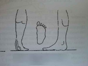 Third degree flat feet